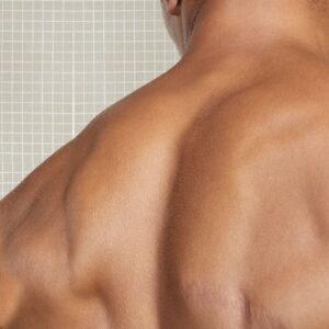 Depilación hombros