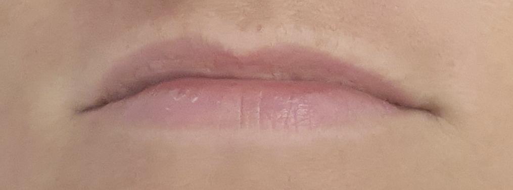 Relleno de labios antes