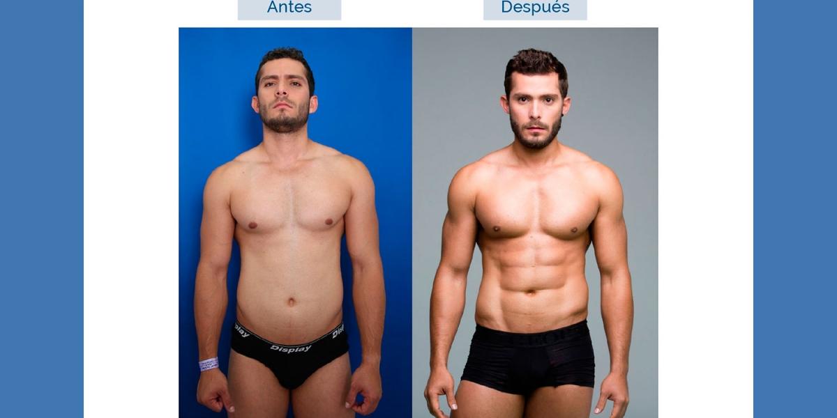 Liposucción alta definición para hombres en Madrid